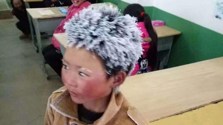 Povestea copilului cu părul îngheţat care a făcut înconjurul internetului